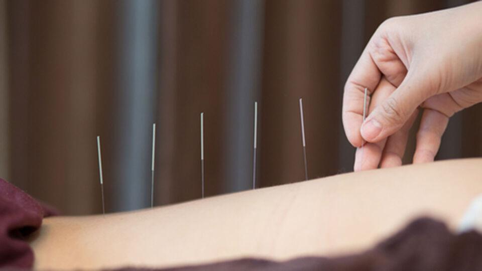 Akupunktur - Akupunktur ist einen Versuch wert, wenn Medikamente und Bewegungstherapien nicht anschlagen. - © Shutterstock