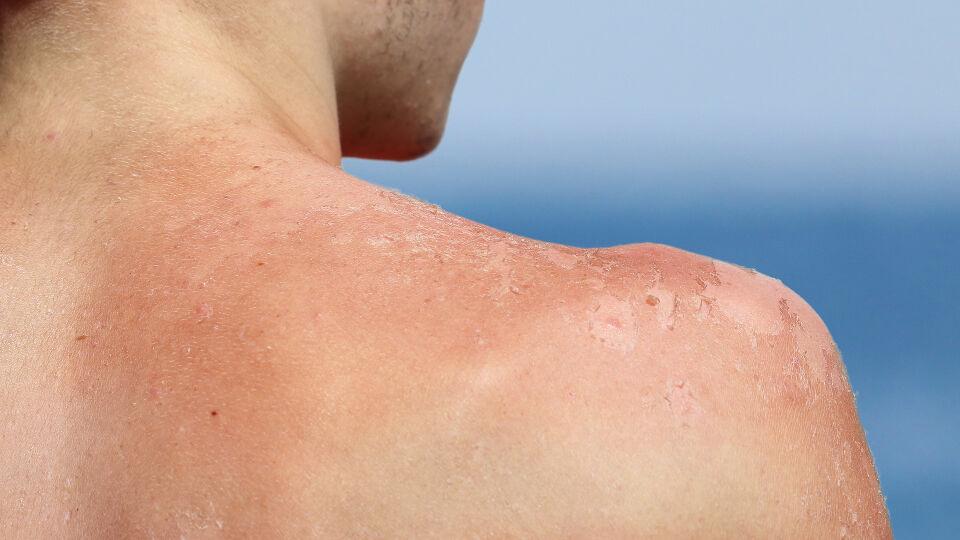 Junge Sonnenbrand - Wenn sich die Haut schält, bedeutet das, dass die Heilung voranschreitet. - © Shutterstock