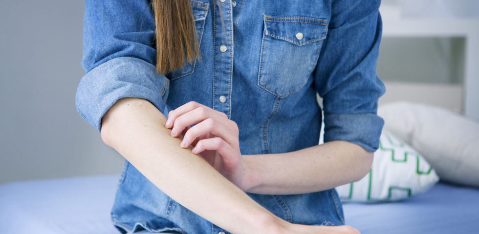 Haut jucken kratzen neurodermitis - © Shutterstock