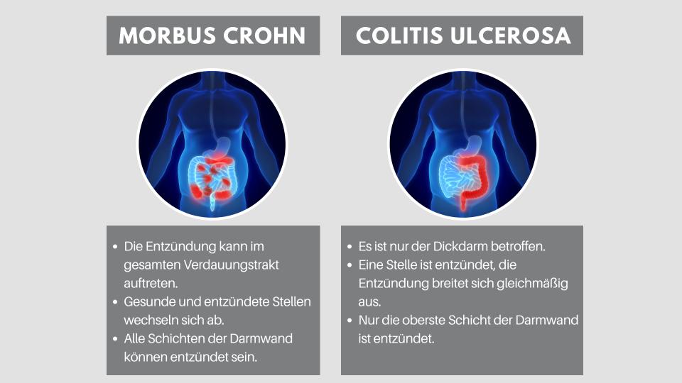 Morbus Crohn vs Colitis Ulcerosa_c_Shutterstock_red_lg - © Shutterstock/red/lg