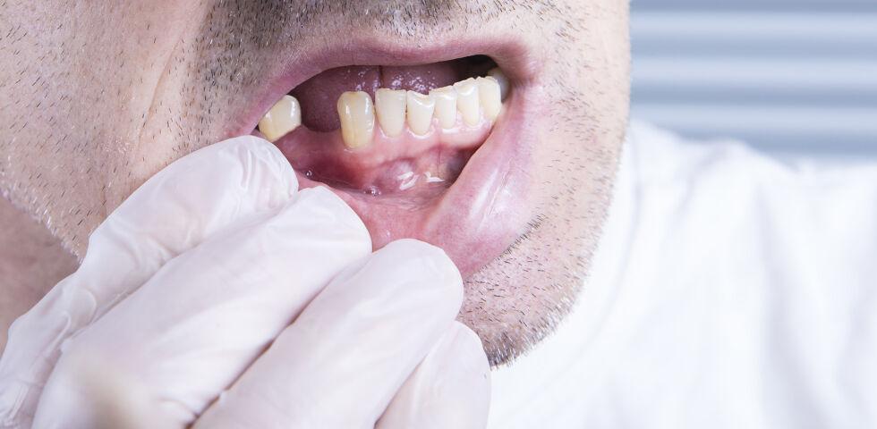 Zahnausfall - Diabetes kann sich auf die Zahngesundheit auswirken. - © Shutterstock
