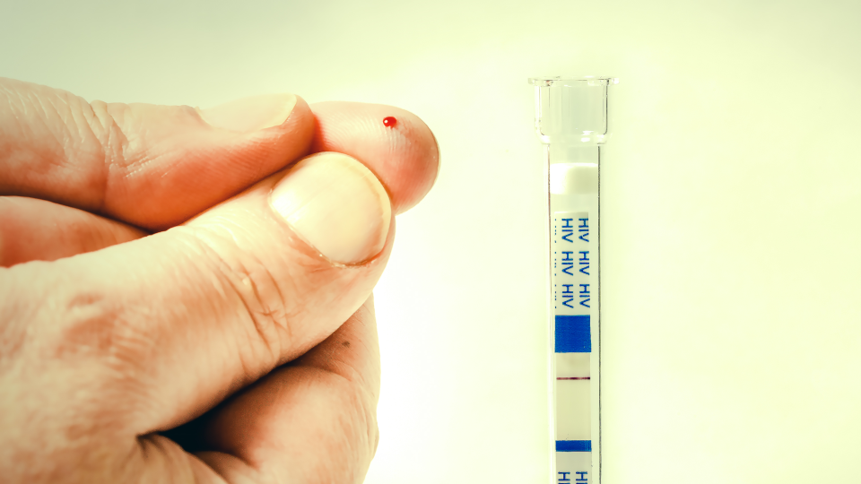 HIV AIDS Selbsttest - © Shutterstock
