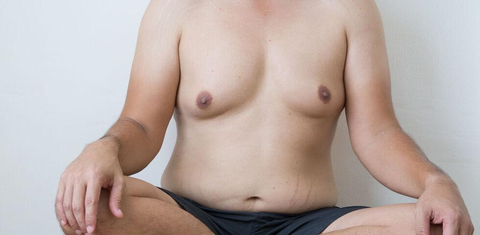 Gynäkomastie Mann - 65 Prozent der Gynäkomastie-Fälle betreffen Burschen in der Pubertät. - © Shutterstock