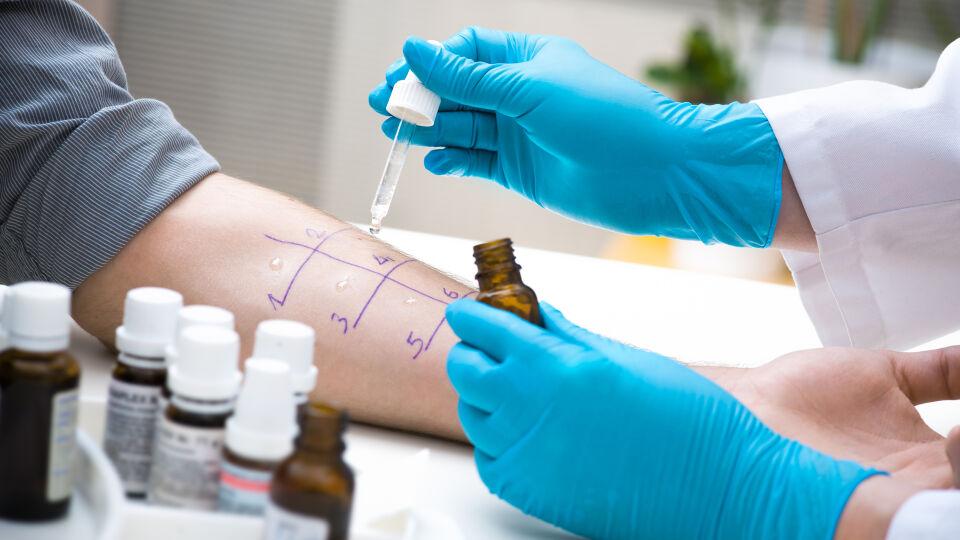 Allergie_Arzt macht einen Pricktest - Zur Abklärung von Allergien wird häufig ein Pricktest gemacht. - © Shutterstock