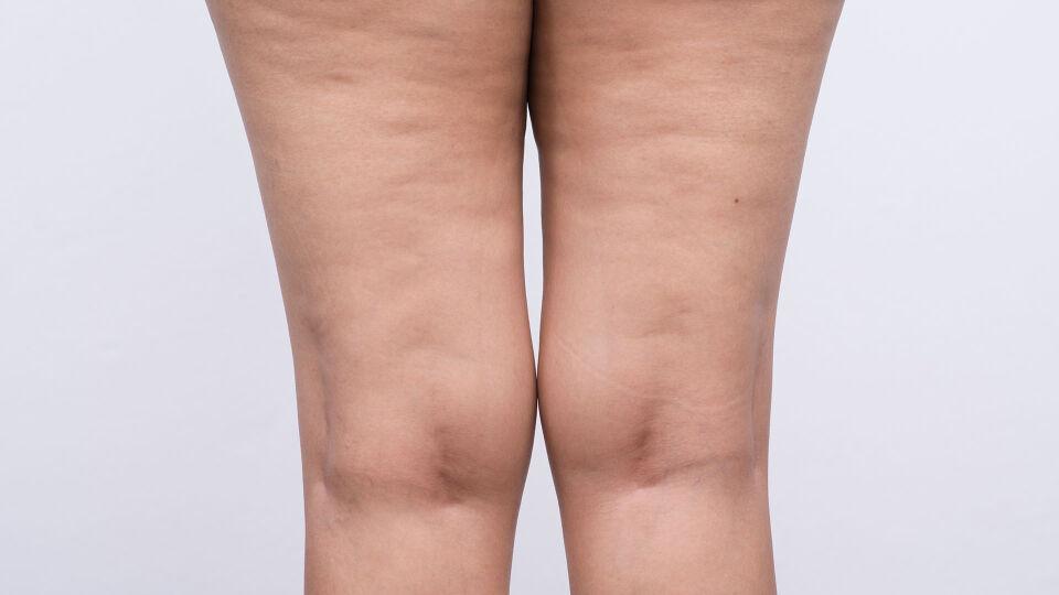 Cellulite - © Shutterstock