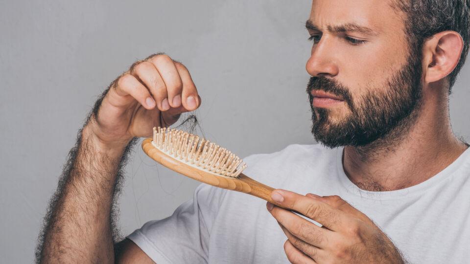 Haarausfall beim Mann - © Shutterstock