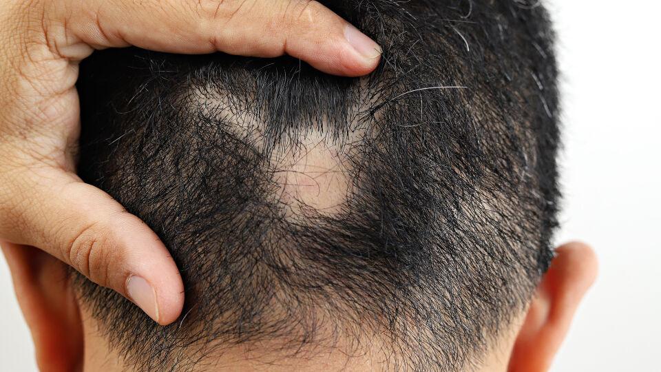 Kreisrunder Haarausfall Alopecia areata - Kreisrunder Haarausfall kann Männer und Frauen gleichermaßen treffen. - © Shutterstock