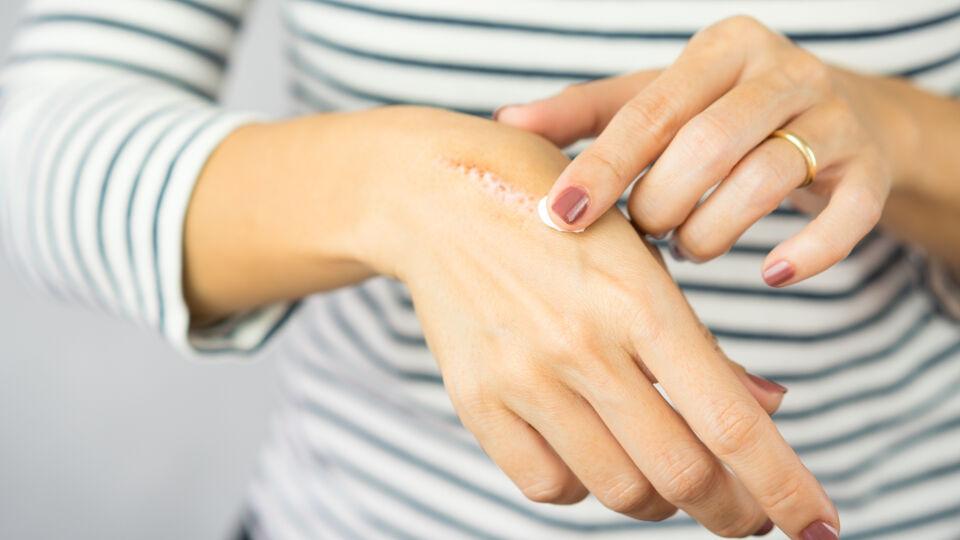 Narbe hautpflege - Auch bei älteren Narben kann eine Narbencreme aus der Apotheke für ein gutes Ergebnis sorgen. - © Shutterstock