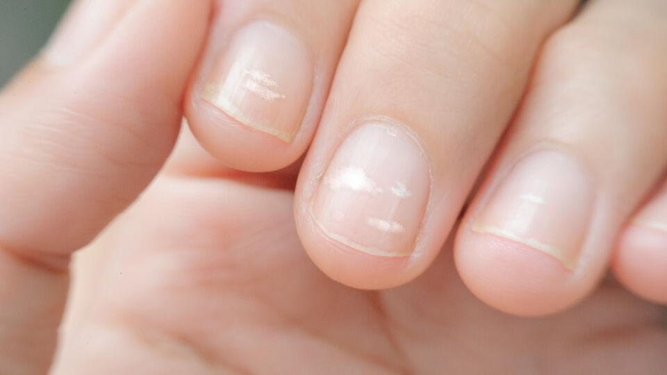Fingernägel Mangel - Weiße Flecken können auf eine Abwehrschwäche oder auf einen Zinkmangel hinweisen. - © Shutterstock