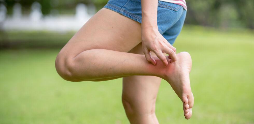 Mückenstich Gelsenstich Frau kratzt sich am Bein