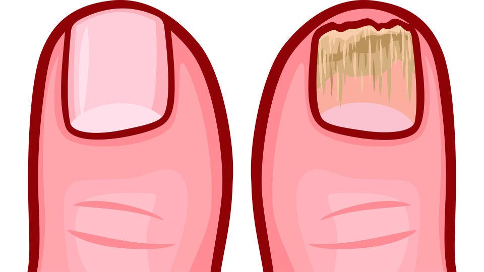 Nagelpilz - Der Pilzbefall beginnt meist am vorderen Rand des Nagels. - © Shutterstock