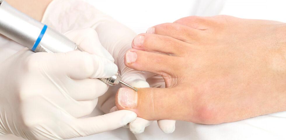 Fußpflege Füße - Eine professionelle Fußpflege kann helfen, Folgeschäden vorzubeugen und zu vermeiden. - © Shutterstock