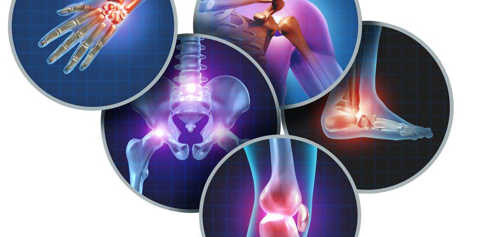 Arthritis Arthrose Rheuma - Jeder dritte Österreicher ab 45 Jahren leidet unter Gelenkschmerzen.