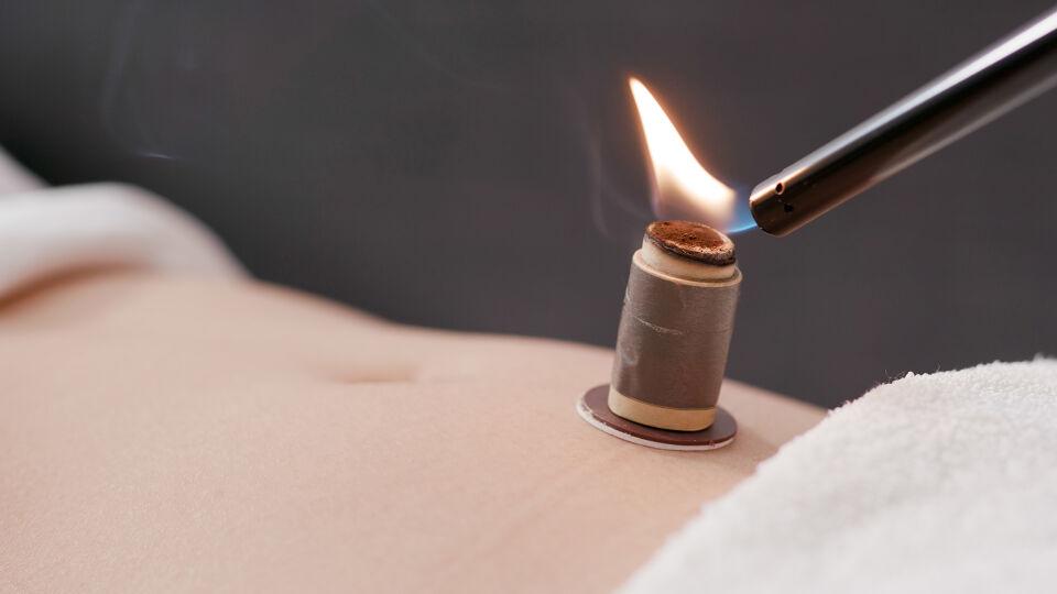 TCM Moxibustion - © Shutterstock