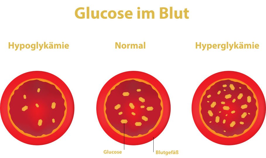 Glucose Laborwerte Diabetes - © Shutterstock/red