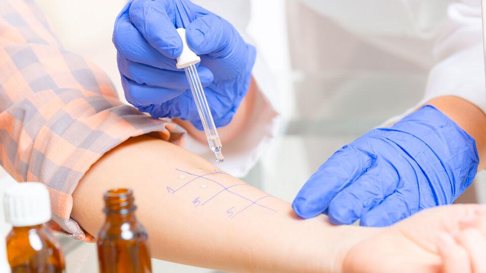 Allergietest - Wenn der Verdacht auf eine Allergie besteht, führt der Arzt meist einen sogenannten Pricktest durch. Dabei werden kleine Mengen des vermuteten Allergens in die Haut eingeritzt und mögliche Rötungen als Zeichen einer Allergie abgewartet. - © Shutterstock