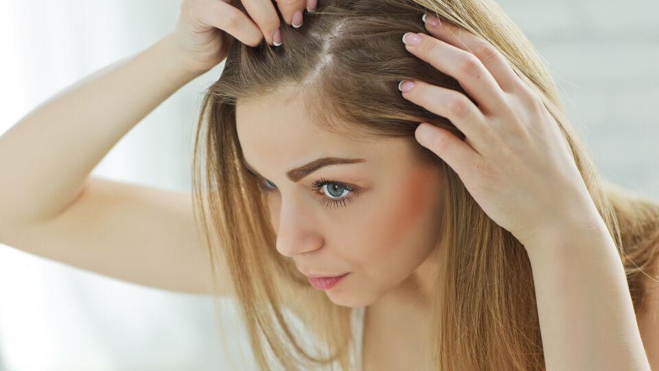 Trockene Kopfhaut_Schuppen_shutterstock_393718285 - Schuppen sind oft auf trockeneKopfhaut zurückzuführen.Waschen Sie die Haare nicht täglichund lassen Sie sie an der Luft trocknen.