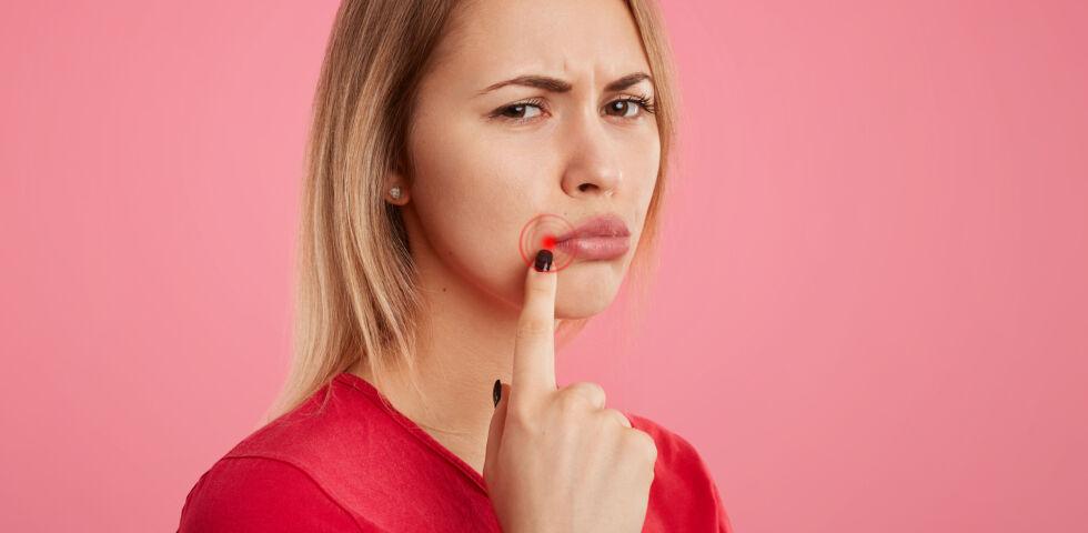 """Herpes_Fieberblase_shutterstock_793323829 - Bei Fieberblasen spricht man in der Fachsprache von """"Herpes labialis""""."""