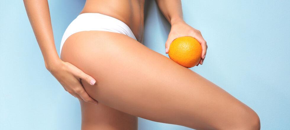 Cellulite_Orangenhaut_shutterstock_676358368 - Durch regelmäßigen Sport und einen gesunden Ernährungsplan kann Cellulite reduziert werden.