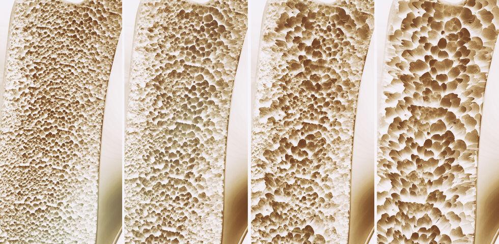 Osteoporose - Menschen mit Diabetes haben ein erhöhtes Risiko an Osteoporose zu erkranken. - © Shutterstock