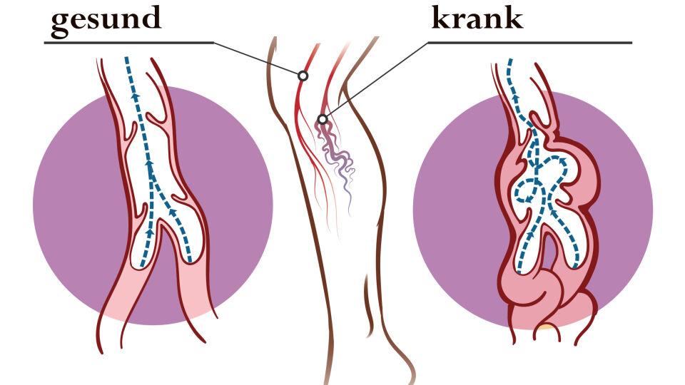 Venen Krampfadern Beine Füße - Bereits jeder zweite Österreicher ist von Krampfadern betroffen. - © Shutterstock