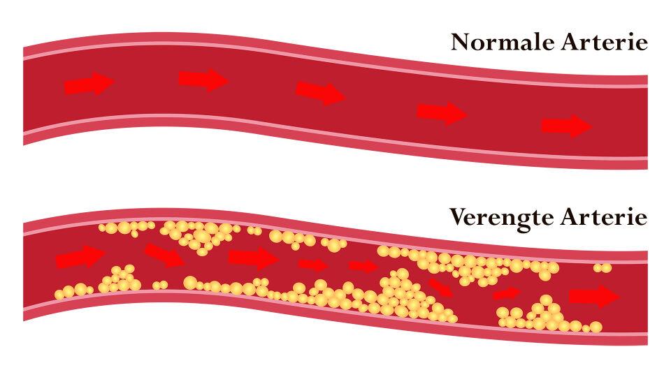 Arterie Cholesterin online - Bei Arteriosklerosepatienten kommt es zu Ablagerungen (Plaques) in den Gefäßwänden. Schlimmstenfalls bildet sich an den Plaques ein Pfropf aus Blutplättchen (Thrombus) – dann droht ein Infarkt. - © Shutterstock