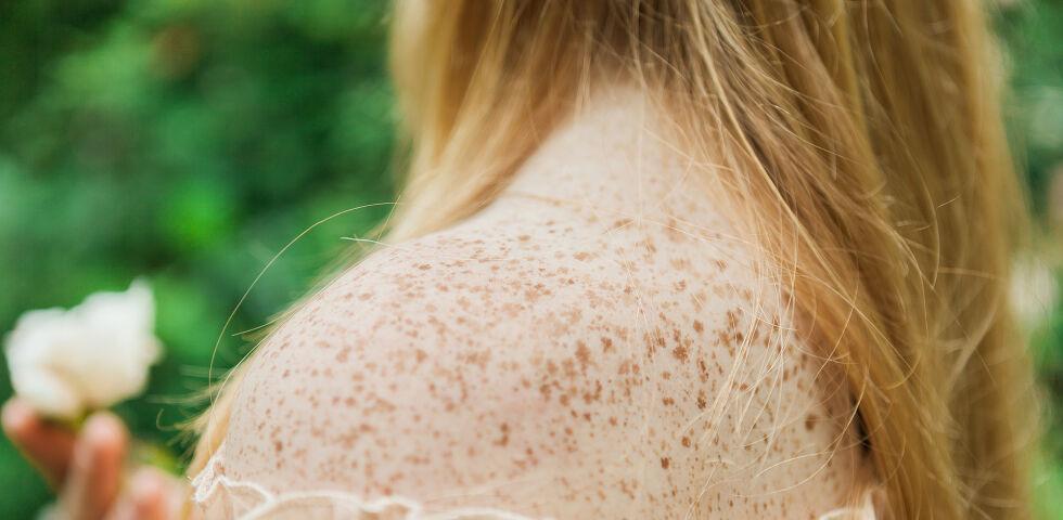 Sommersprossen Haut - © Shutterstock
