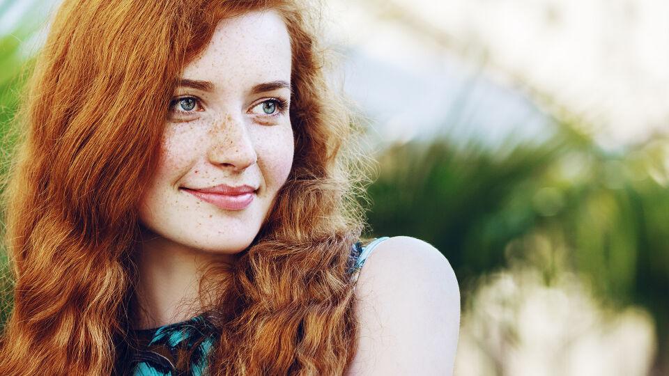 Sommersprossen Haut Frau - © Shutterstock