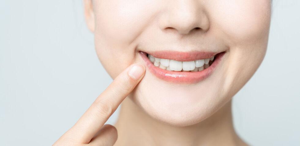 Zähne - Die Hauptsymptome einer Zahnfleischentzündung sind Rötungen, Schwellungen und Zahnfleischbluten. - © Shutterstock