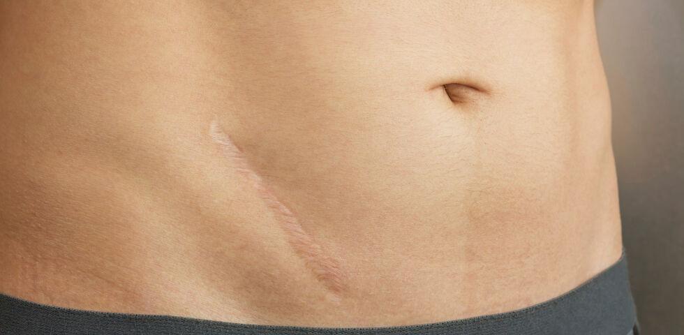Narbenpflege - Beginnen Sie mit der Narbenpflege sobald die Wunde gut verschlossen ist, um das Erscheinungsbild und unangenehme Nebenwirkungen zu verbessern. - © Shutterstock
