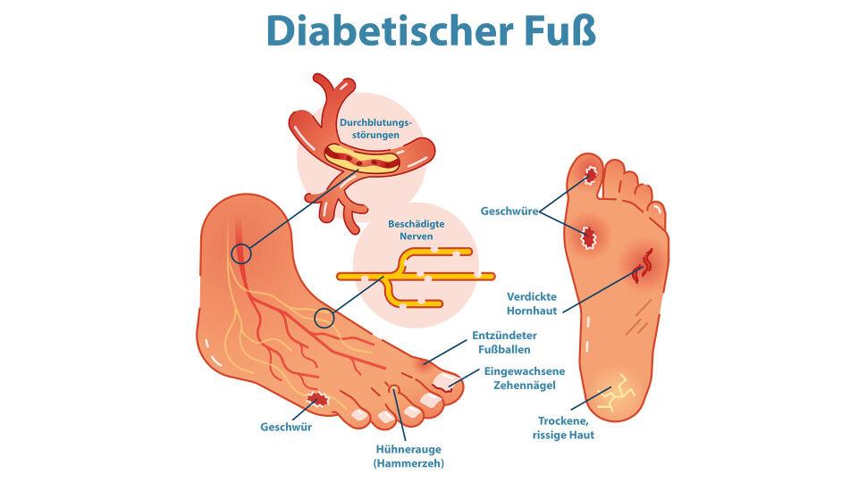 Diabetischer Fuß (dt) - Das diabetische Fuß-Syndrom wird von vielen Diabetikern gefürchtet. - © Shutterstock/red