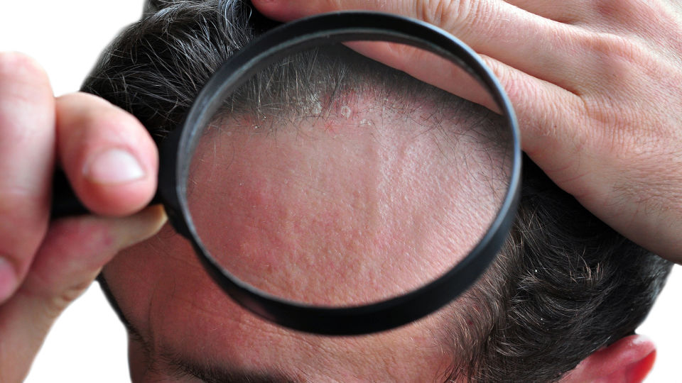 Haare Psoriasis Haut - Etwa 80 Prozent der Psoriasis-Betroffenen leiden auch unter einem Befall der Kopfhaut. - © Shutterstock