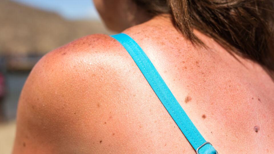 Sonnenbrand - © Shutterstock
