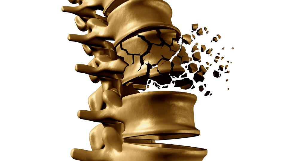 Osteoporose - Der Knochen verliert an Stabilität, Festigkeit, Elastizität und Beweglichkeit. Mögliche Konsequenzen von Osteoporose sind starke Schmerzen, Immobilität oder sogar Pflegebedürftigkeit. - © Shutterstock