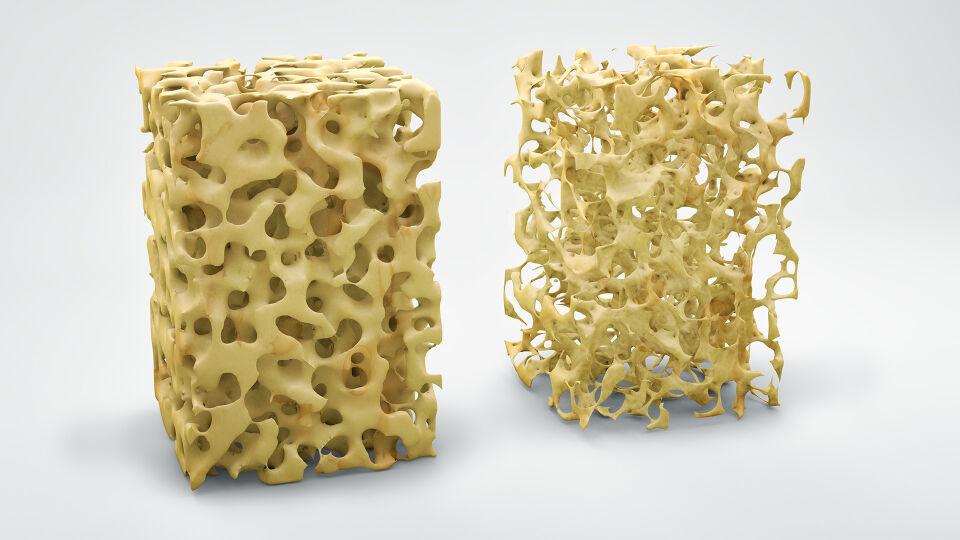 Osteoporose - Bei Osteoporose verliert der Knochen an Stabilität, Festigkeit, Elastizität und Beweglichkeit. - © Shutterstock
