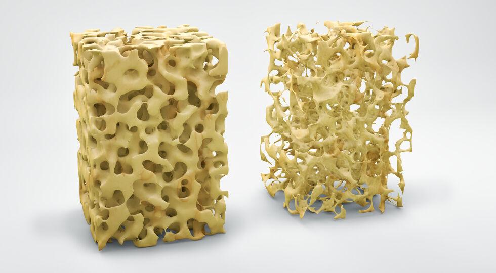 Osteoporose - Illustration eines normalen Knochens (li) und eines Knochens mit Osteoporose. Es handelt sich um eine Störung im Knochenstoffwechsel. Die Mikroarchitektur der Knochenbälkchen verändert sich. - © Shutterstock